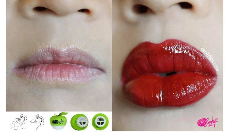 Lip Plumpers ModelB:Size(S to M) Candylipz