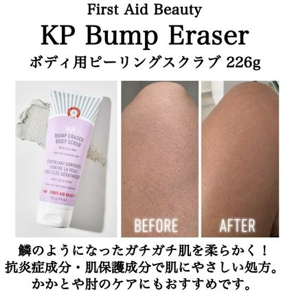 First Aid Beauty KP Bump Eraser ピーリング&ボディスクラブ